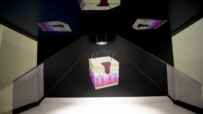 Holografía de la piel afectada
